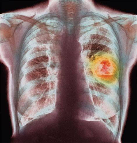 Существует ли эффективный метод профилактики рака лёгкого?