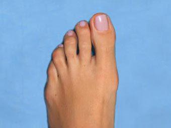 Риск рака легких определили по обрезкам ногтей