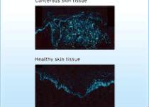 Изобретен лазер, который распознает рак кожи