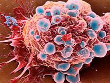 Революционная теория: раковые опухоли — живые организмы