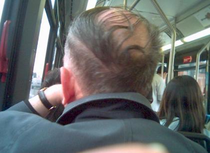Выпадение волос может указывать на наличие рака простаты