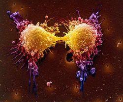 Раковые опухоли – паразиты внутри нас