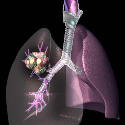 Больные раком легких получат новый препарат, продлевающий жизнь