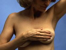 Найдены новые гены, вызывающие рак груди