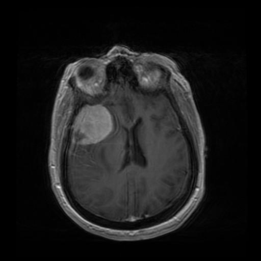 Уникальный случай: легкая авария «разбудила» спящую опухоль