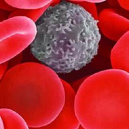 Впервые в России будет осуществлен скрининг сразу по четырем видам рака