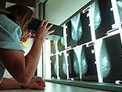 Шведские учёные: маммография спасает жизнь