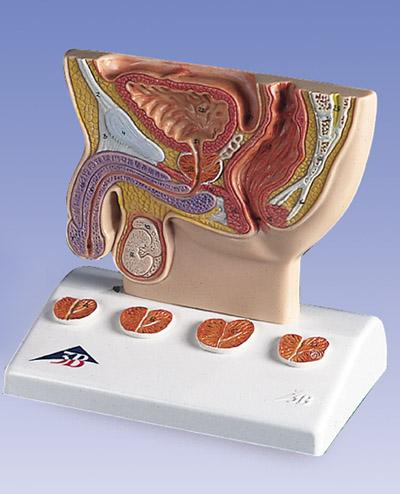 Лечение рака предстательной железы: прооперированные больные живут дольше?