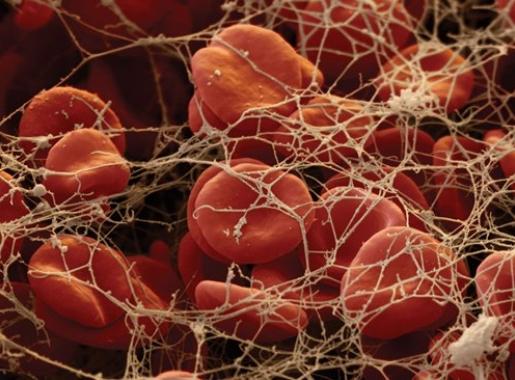 Густая кровь повышает риск колоректального рака