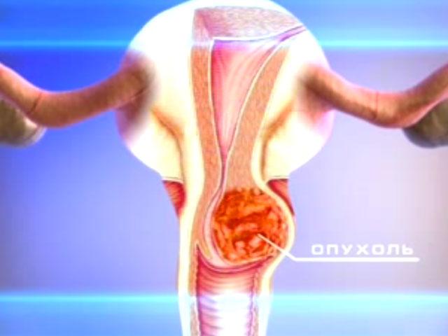 Сладкие мучные изделия повышают риск развития рака матки у женщин