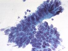 Астрономы разработали революционный способ лечения рака
