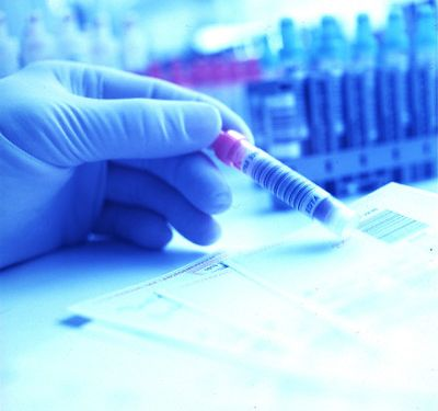 Простое изобретение улучшит раннюю диагностику рака