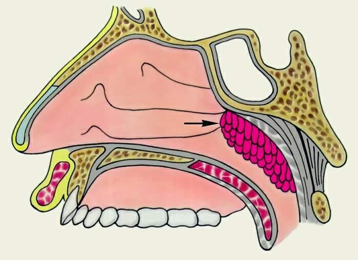 Злокачественные опухоли носоглотки
