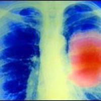 Новая технология для ранней диагностики рака легкого создана учеными