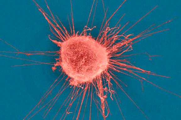 Ученые придумали, как уничтожать злокачественные опухоли изнутри