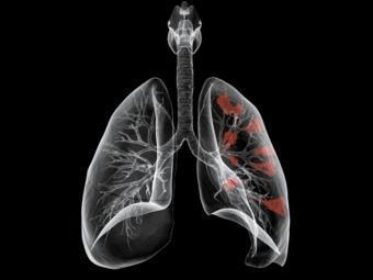 В мире насчитали 12 миллионов новых случаев рака в год