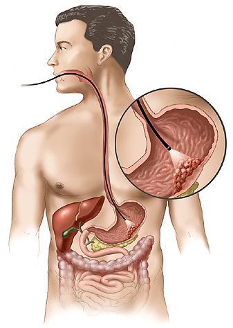 Рак желудка вызывает бактерия
