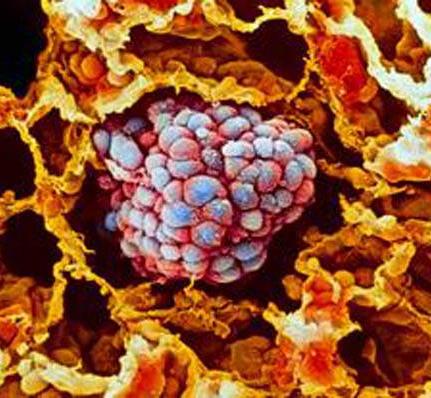 Цена лечения рака растет из-за экспериментов