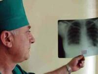 Рак легких все чаще диагностируют у молодёжи