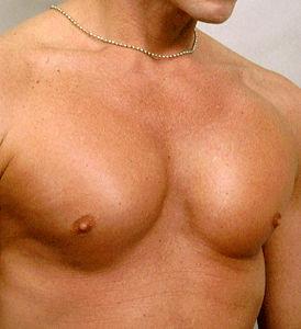 Рак груди – мужская болезнь?