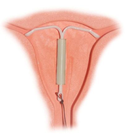Использование спиралей снижает риск возникновения рака шейки матки