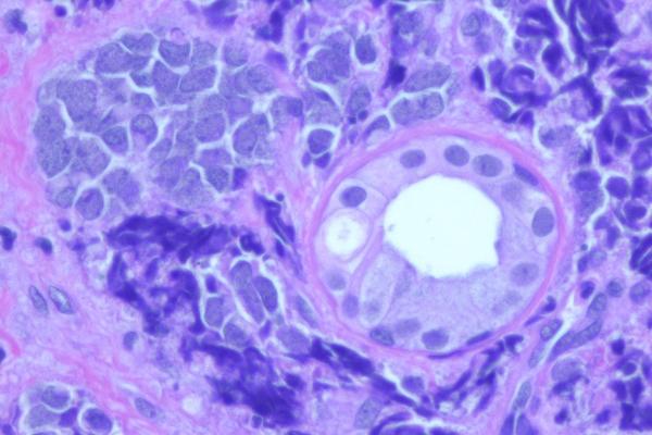 Цена лечения раковых больных очень быстро растет