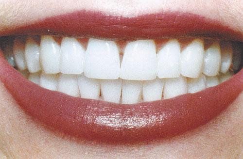 Отбеливание зубов или осветление, как правильно сделать выбор?