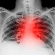 Лекарства против рака легкого будут вводить в виде ингаляций