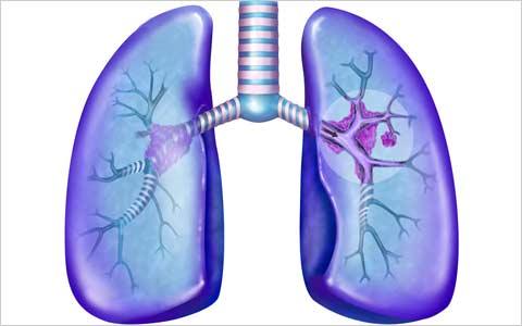 Над новым тестом для терапии рака лёгких работают российские учёные