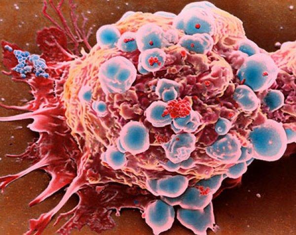 Вот уже долгое время ученые отыскивают способы приостановки роста сосудов в опухоли