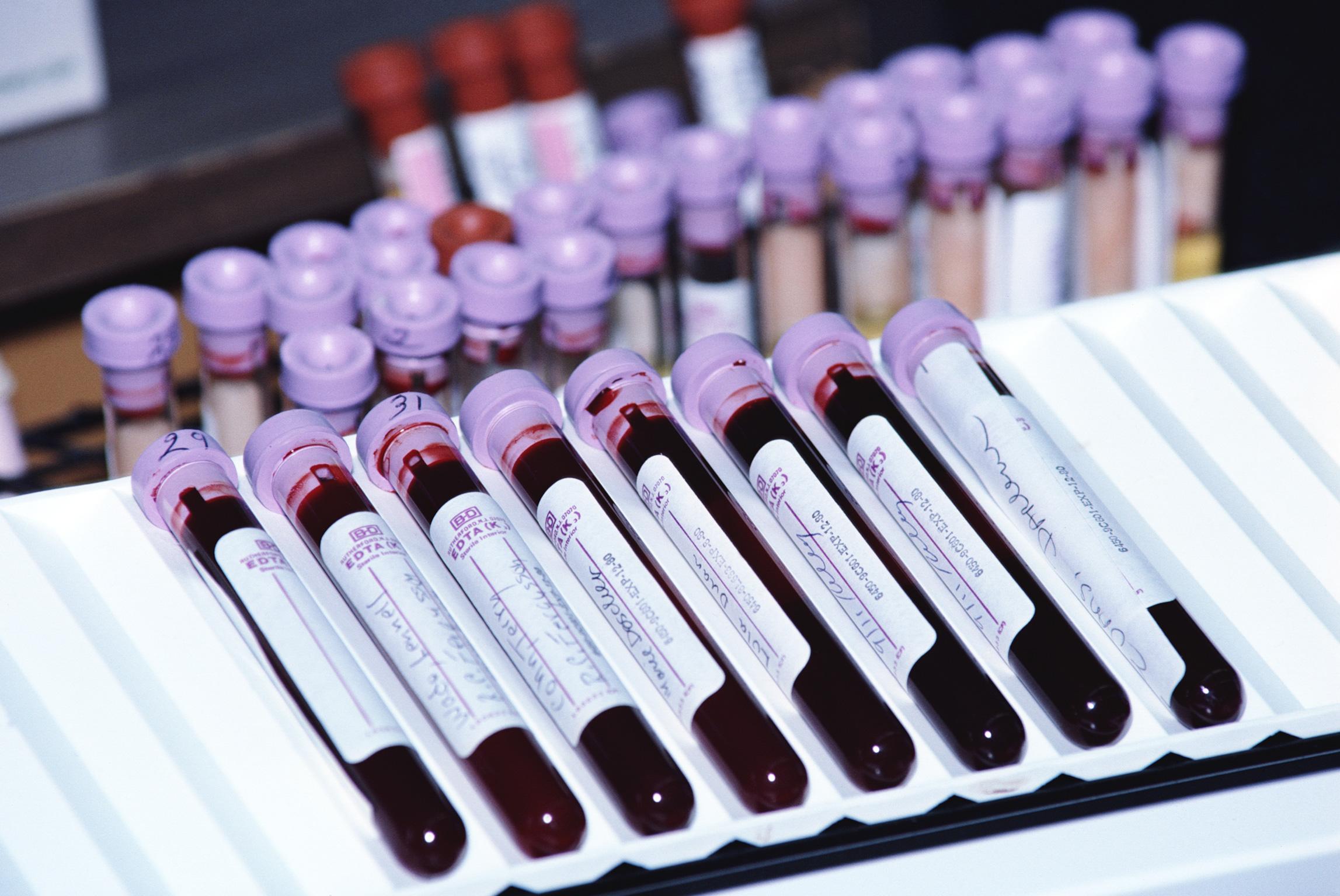 Точно предсказать опасность возврата недуга можно с помощью анализа крови