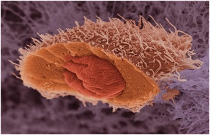 Учеными создается база данных видов рака