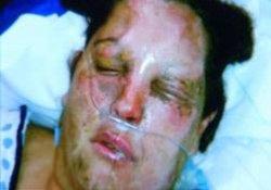 Вместо избавления от опухоли мозга хирурги лишили лица
