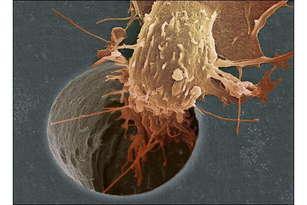 Аэрозоль для мгновенного обнаружения рака