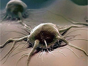 Онкологи пообещали вылечить «неизлечимый рак»