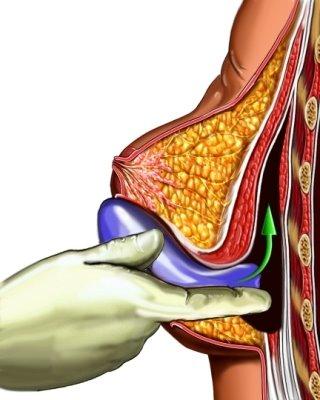 Грудные импланты могут вызвать рак груди