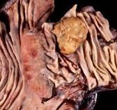 Эверолимус тормозит развитие нейроэндокринных опухолей