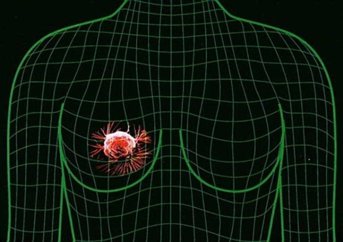 Рак груди и умственные отклонения неразрывно связаны
