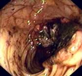 Оксалиплатин повышает выживаемость пациентов с раком толстой кишки