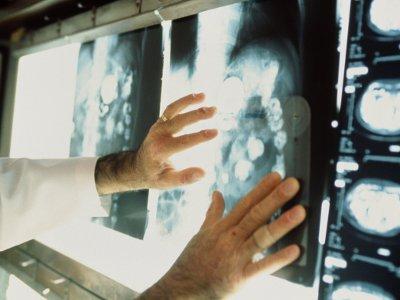 Смоленские медики смогут распознавать рак на ранних стадиях