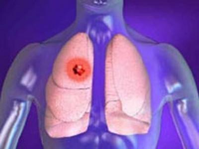 Что заменит биопсию легких