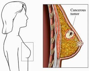Открыт действенный метод лечения агрессивного рака груди