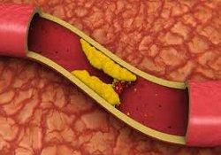Сенсация: холестерин способен предотвращать развитие рака
