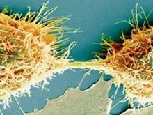 Ученые подготовили двухтомный труд, рассказывающий о раке все