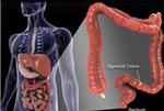 Разработан новый метод лечения рака толстой кишки