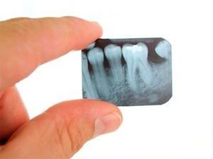 Обнаружена связь между рентгеном зубов и опухолями мозга