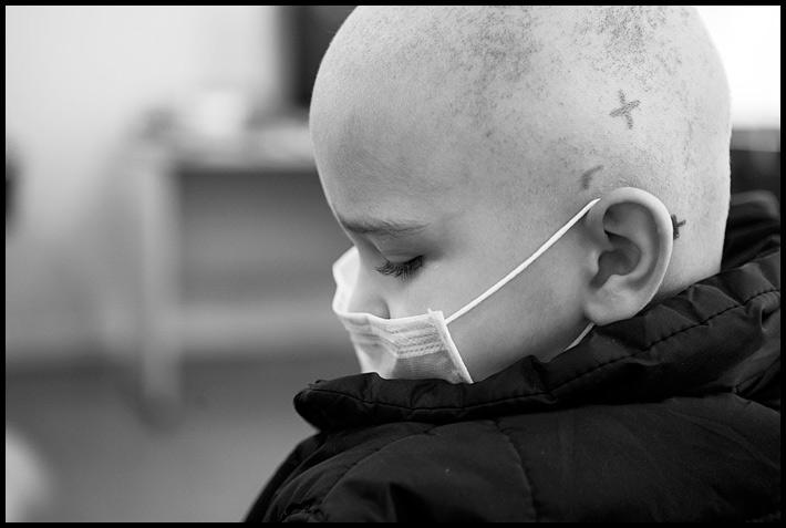 Опыт оренбургских детских онкологов