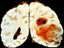 Вакцина из опухолей мозга больных раком продлевает им жизнь