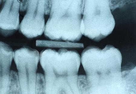 Рентген зубов способен привести к раку мозга