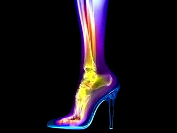 Обувь для нашего здоровья